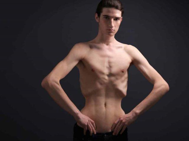 کمبود وزن و راهکارهای درمان آن