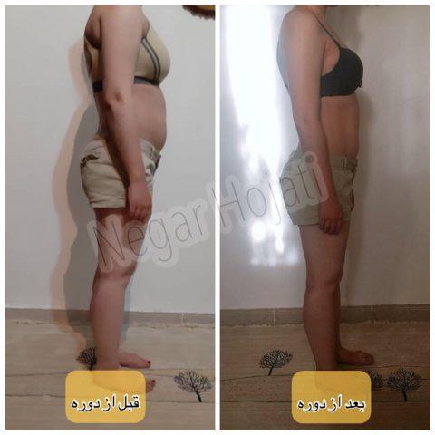 کاهش وزن و اصلاح فرم بدن